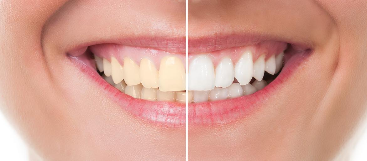 Branqueamento Dentario Rossi Goncalves